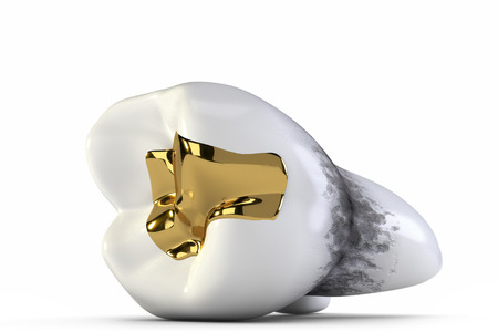 canal: Gold teeth and holes Stock Photo