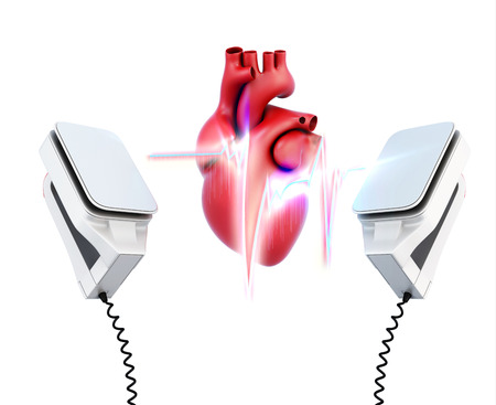 Conceptual image of the model heart and the discharge of defibrillation on a white background. 3d illustration. Фото со стока