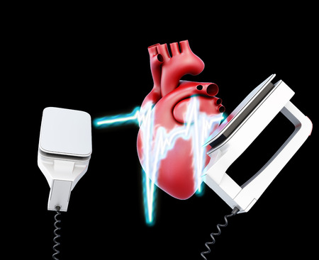 cardioverter: Defibrillator and heart on a black background. 3d illustration.