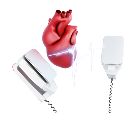 electricity 3d: Discharge of a defibrillator and heart isolated on white background. 3d render image.