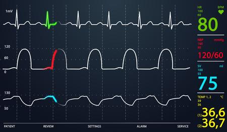 Imagen de la pantalla esquemática Unidad de Cuidados Intensivos mostrando valores normales para los signos vitales, empezando por la frecuencia cardiaca. Fondo oscuro. Foto de archivo - 23987685