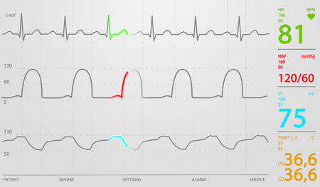 Image of schematic Intensive Care Unit monitor showing normal values for vital signs, starting with cardiac frequency. White background. photo