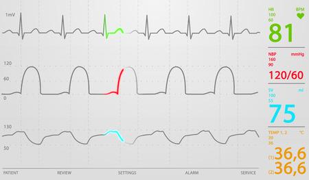 signos vitales: Imagen de la pantalla esquemática Unidad de Cuidados Intensivos mostrando valores normales para los signos vitales, empezando por la frecuencia cardiaca. El fondo blanco. Foto de archivo