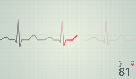 Schematic diagram of normal sinus rhythm for a human heart as seen on ECG. Red highlights on bright background. photo