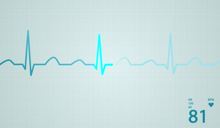 Schematic diagram of normal sinus rhythm for a human heart as seen on ECG.Blue highlights on bright background. photo