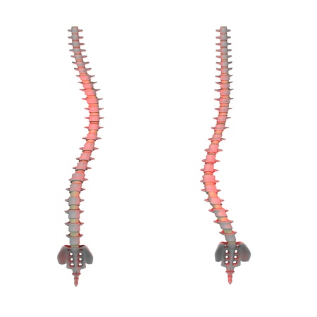 scoliosis: 3d render of spine scoliosis