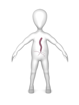 pylori: 3d render of cartoon character with helicobacter