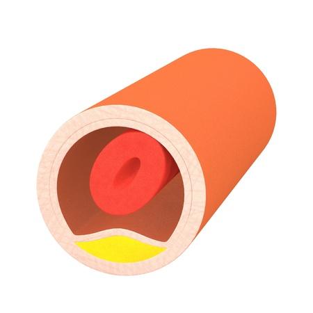 vasos sanguineos: 3d de los vasos sangu�neos de colesterol