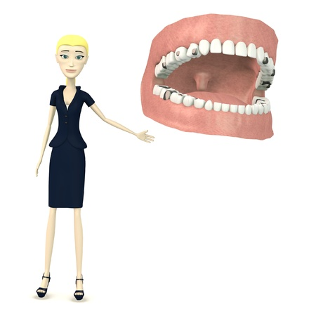 incisor: 3d render of cartoon character with teeth and fillings Stock Photo