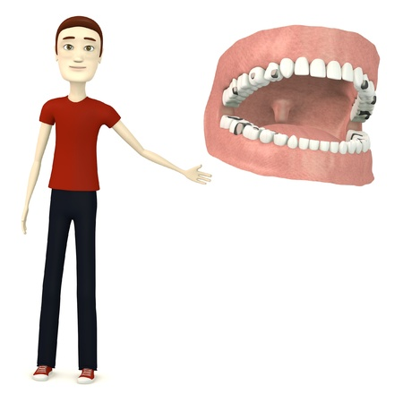 fillings: 3d render of cartoon character with teeth and fillings Stock Photo
