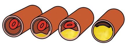 vasos sanguineos: imagen de la historieta de los vasos sangu�neos con colesterol Foto de archivo
