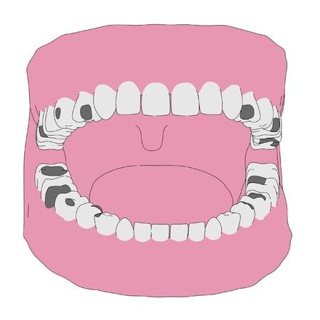 plumbum: cartoon image of human teeth with fillings