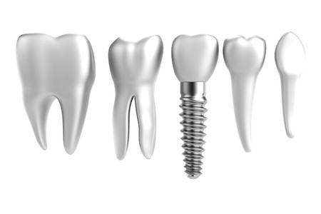 realistic 3d render of tooth implant 写真素材