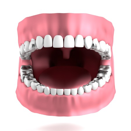 realistic 3d render of human teeth with fillings Stock Photo