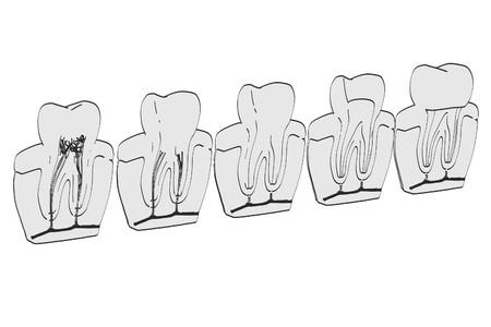 2d: 2d cartoon illustration of endodontics Stock Photo