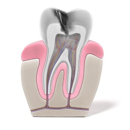 歯内療法・根管の手順の 3 d レンダリング