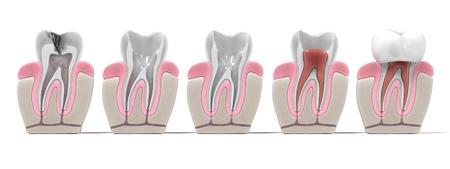 3D-Renderings von Endodontie - Wurzelkanalbehandlung