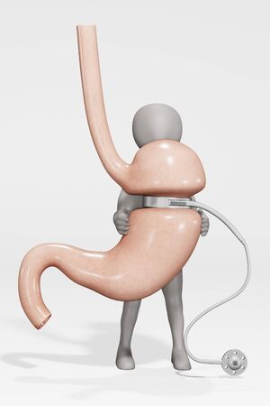 3D Render of Character with Human Stomach with Gastric Band