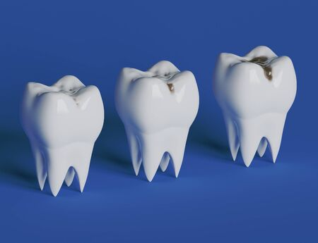 Three stages of tooth decay, caries. 3d illustration