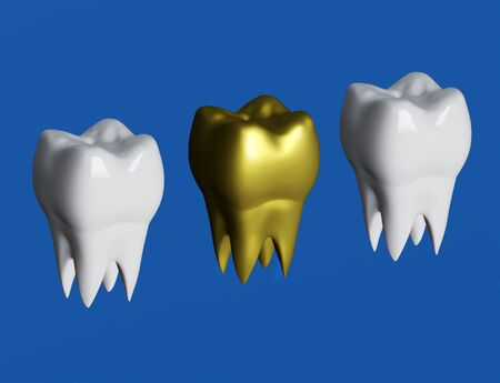 Golden tooth next to white teeth, tooth In golden crown. 3d illustration