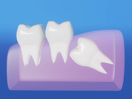 Wisdom tooth grows wrong, wisdom tooth problem, horizontal position of the wisdom tooth, Impacted wisdom tooth. 3d illustration