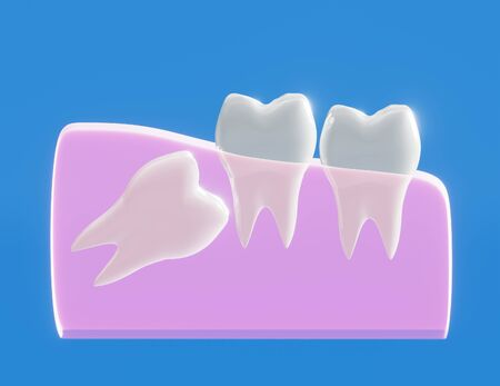 Wisdom tooth grows wrong, wisdom tooth problem, horizontal position of the wisdom tooth, Impacted wisdom tooth. 3d illustration Zdjęcie Seryjne - 142482253