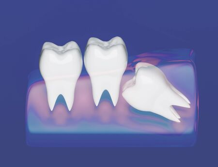 Wisdom tooth grows wrong, wisdom tooth problem, horizontal position of the wisdom tooth, Impacted wisdom tooth. 3d illustration Zdjęcie Seryjne - 142482189
