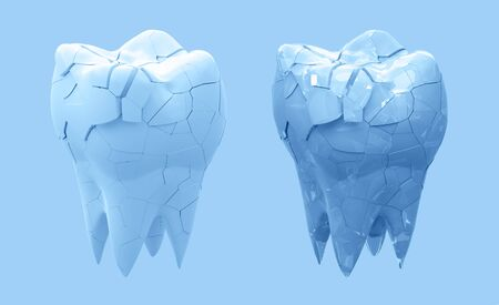 Broken molars tooth and whole tooth isolated on blue background. 3d illustration Foto de archivo