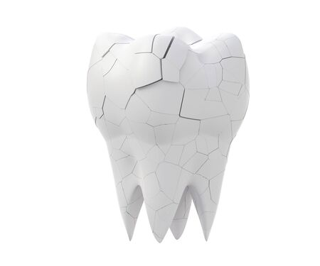 Broken molars tooth and whole tooth isolated on white background. 3d illustration Foto de archivo