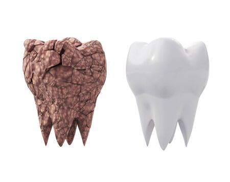 dirty plaque broken molar tooth and clean white tooth isolated on white background. 3d illustration