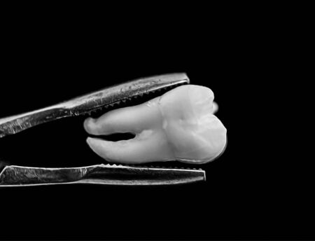 bad real tooth removed in the dental forceps on black background