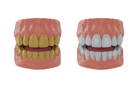 Jaw with yellow teeth, jaw with whitened teeth, Before and after whitening concept, 3d render