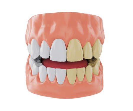 half jaw with yellow teeth and half jaw with whitened teeth, Before and after whitening concept, 3d render Stock Photo