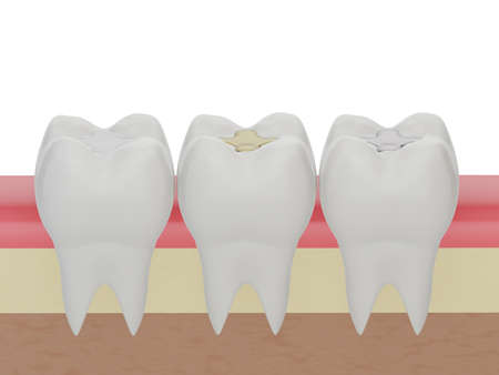 Teeth with gold, amalgam and composite inlay dental filling, three molar teeth in the gum. Different types of fillings, 3d render Foto de archivo
