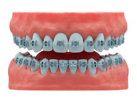 Realistic human jaws with healthy teeth and classic metal braces, front view, isolated, 3d render