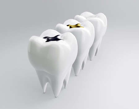 Teeth with gold, amalgam and composite inlay dental filling. Molars on white backdrop. Different types of fillings, 3d render Stock Photo