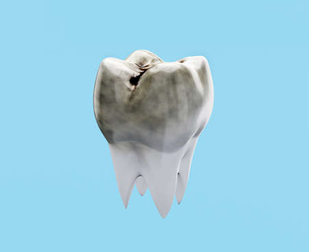 Carious molar tooth on blue background, tooth decay concept, caries, 3d render