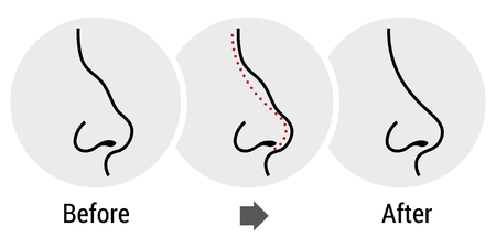 cuerpo femenino: Pl�stica de nariz Rinoplastia cirug�a
