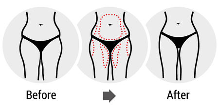 chirurgia plastyczna, przed i po