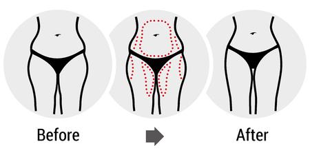 muslos: cirugía plástica antes y después