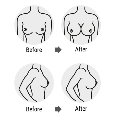 Breast before and after treatment Иллюстрация