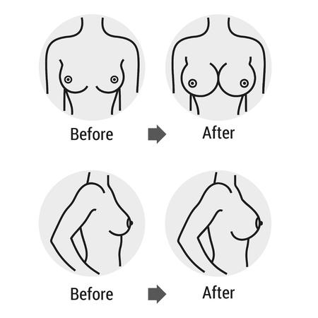 Mama antes y después del tratamiento Ilustración de vector