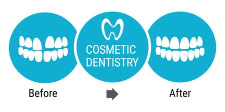 Medical infografics: Dental services. Cosmetic dentist before and after. Dental design over white background illustration