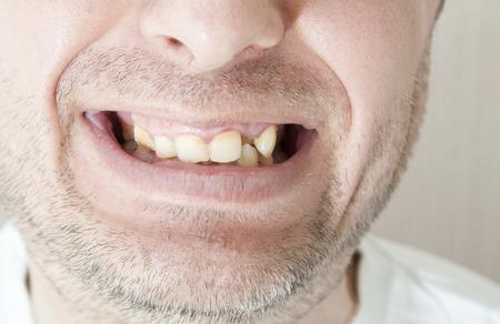 diseased: Diseased teeth of the patient. Tartar and tooth decay