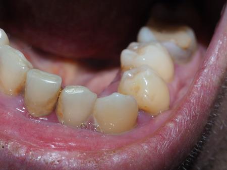 dientes sucios: Dientes enfermos del paciente. El sarro y caries Foto de archivo