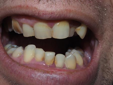 dientes sanos: Dientes enfermos del paciente. El sarro y caries Foto de archivo