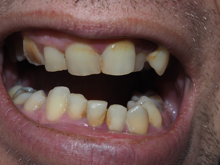 Diseased teeth of the patient. Tartar and tooth decay