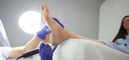 Peeling feet Pedicure SPA procedure in the beauty salon. Electric apparatus for pedicure. Woman getting her feet peeled in spa center 版權商用圖片