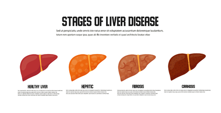 Stages of liver damage concept. Vector icon Illustration