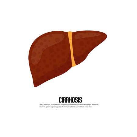 Cirrhosis of the liver vector illustration Illustration